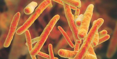 dezinfectie TBC